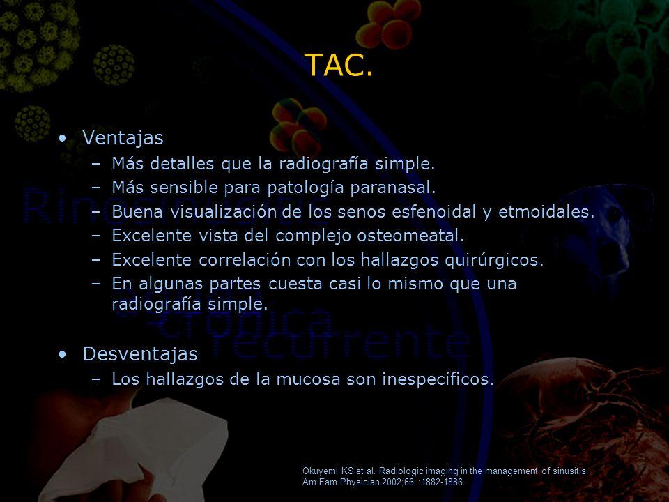 TAC. Ventajas –Más detalles que la radiografía simple. –Más sensible para patología paranasal. –Buena visualización de los senos esfenoidal y etmoidal