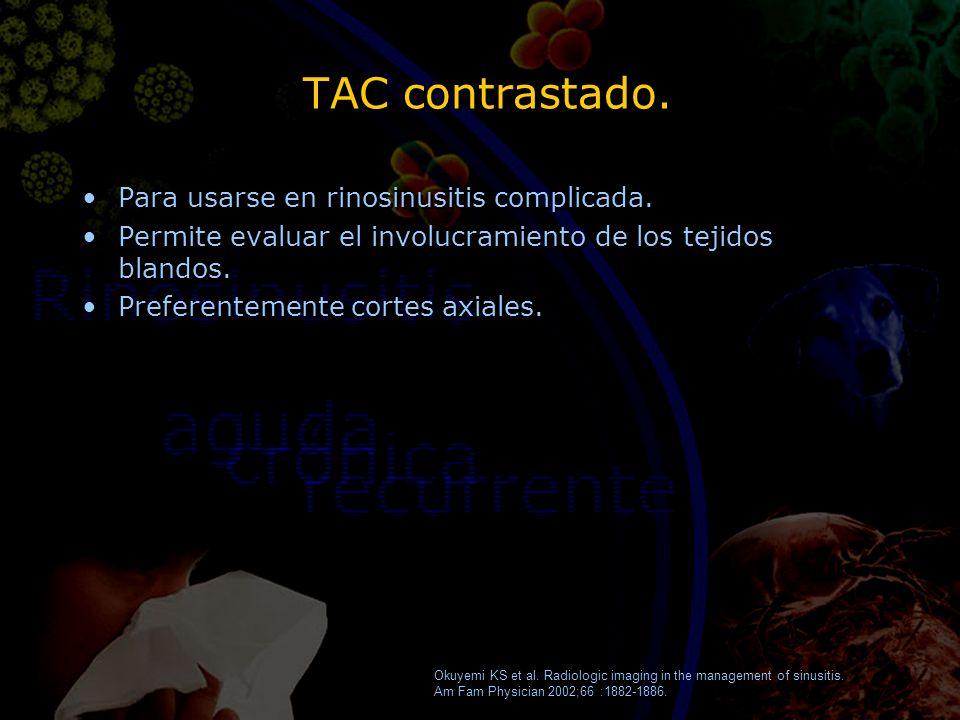 TAC contrastado. Para usarse en rinosinusitis complicada. Permite evaluar el involucramiento de los tejidos blandos. Preferentemente cortes axiales. P