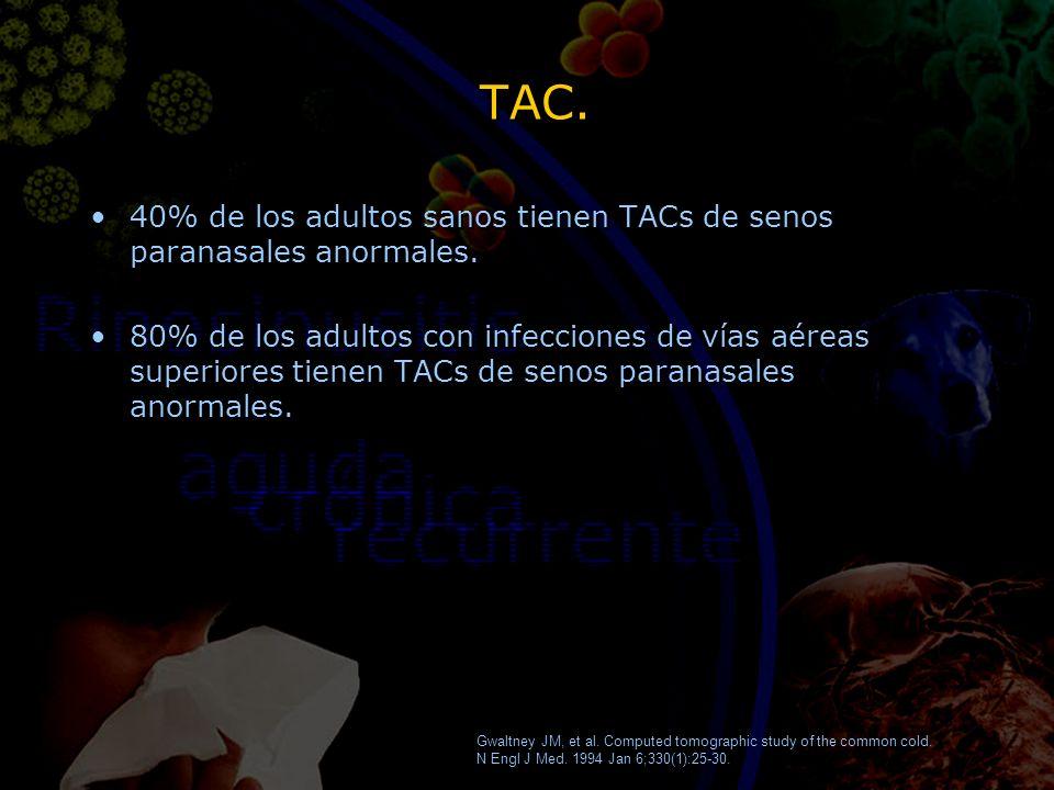 TAC. 40% de los adultos sanos tienen TACs de senos paranasales anormales. 80% de los adultos con infecciones de vías aéreas superiores tienen TACs de