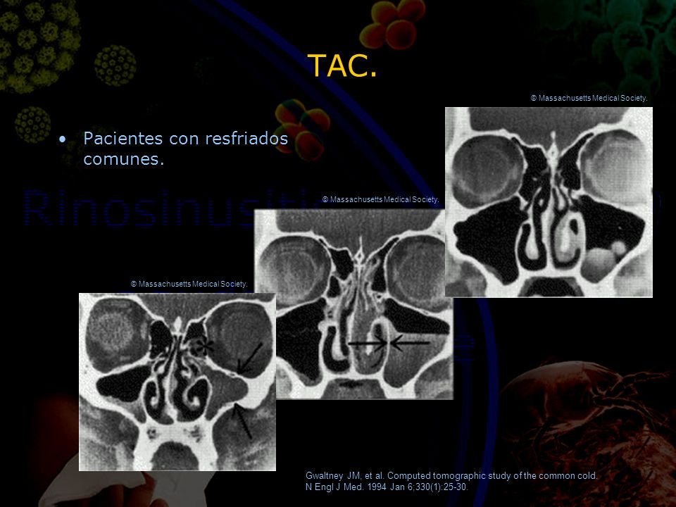 TAC. Pacientes con resfriados comunes. Gwaltney JM, et al. Computed tomographic study of the common cold. N Engl J Med. 1994 Jan 6;330(1):25-30. © Mas