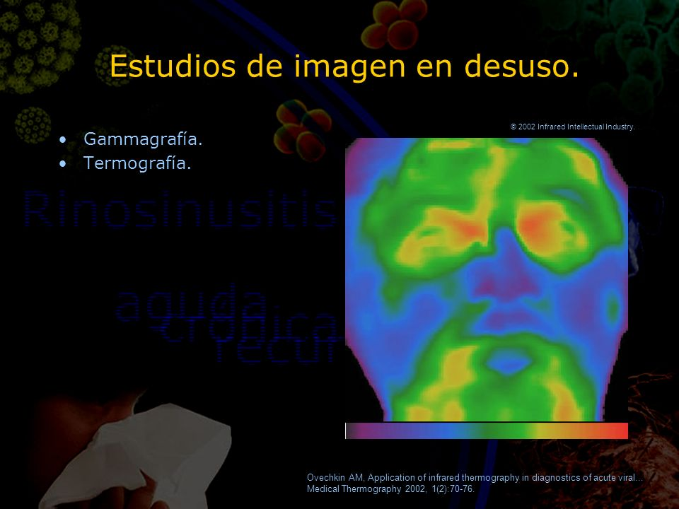 Estudios de imagen en desuso. Gammagrafía. Termografía. Gammagrafía. Termografía. Ovechkin AM, Application of infrared thermography in diagnostics of