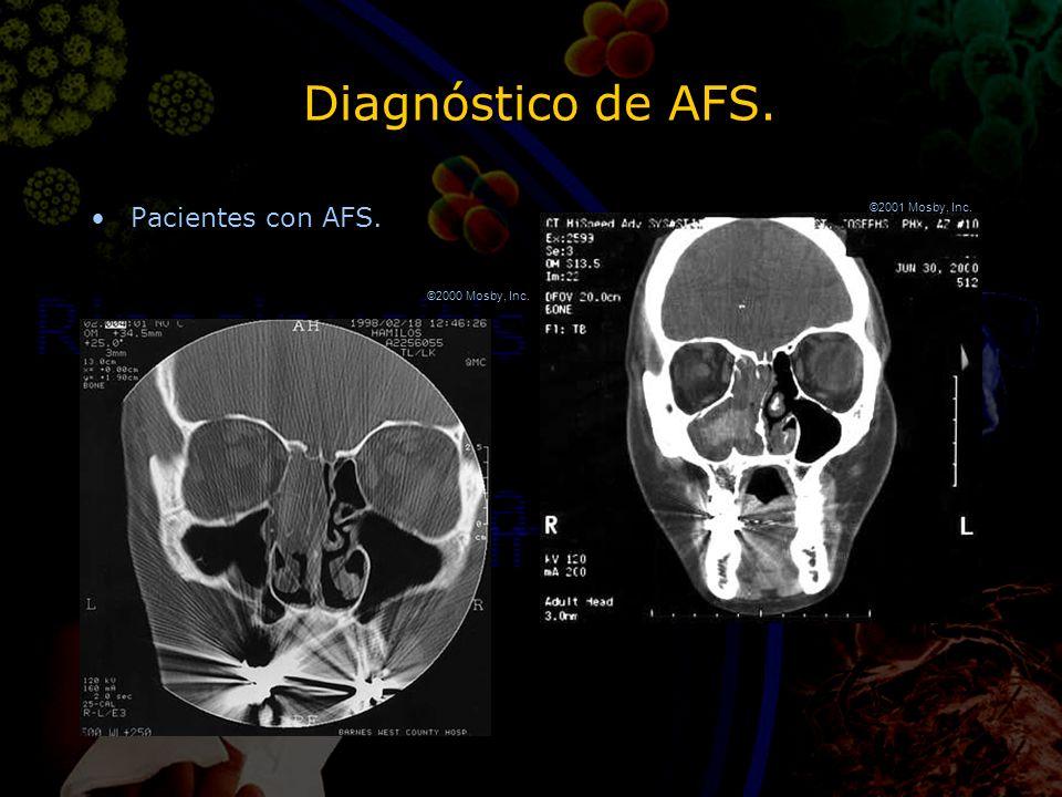 Diagnóstico de AFS. Pacientes con AFS. ©2000 Mosby, Inc. ©2001 Mosby, Inc.