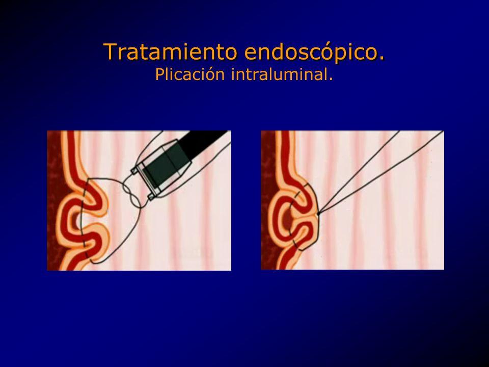 Tratamiento endoscópico. Plicación intraluminal.