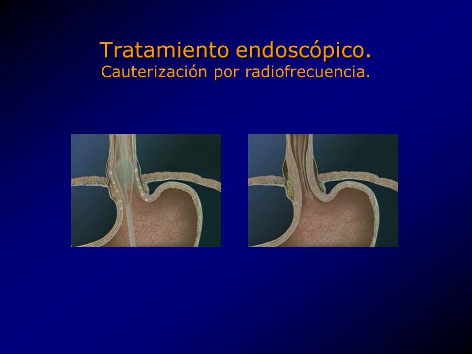 Tratamiento endoscópico.Mejoría en el tiempo de exposición a <4 pH en todos los pacientes.