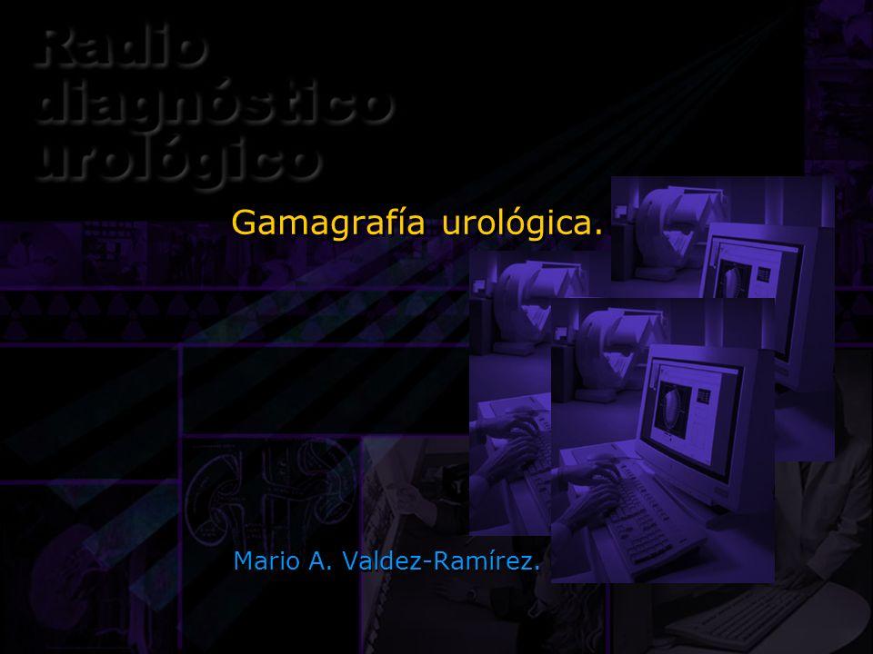 Gamagrafía urológica. Mario A. Valdez-Ramírez.