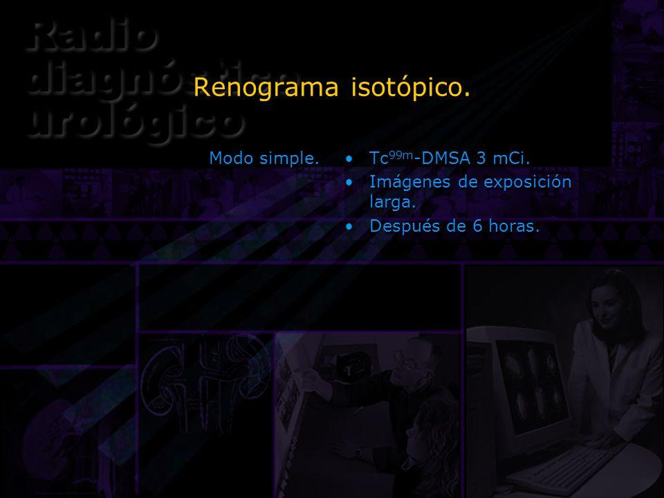 Renograma isotópico. Modo simple. Tc 99m -DMSA 3 mCi. Imágenes de exposición larga. Después de 6 horas. Tc 99m -DMSA 3 mCi. Imágenes de exposición lar