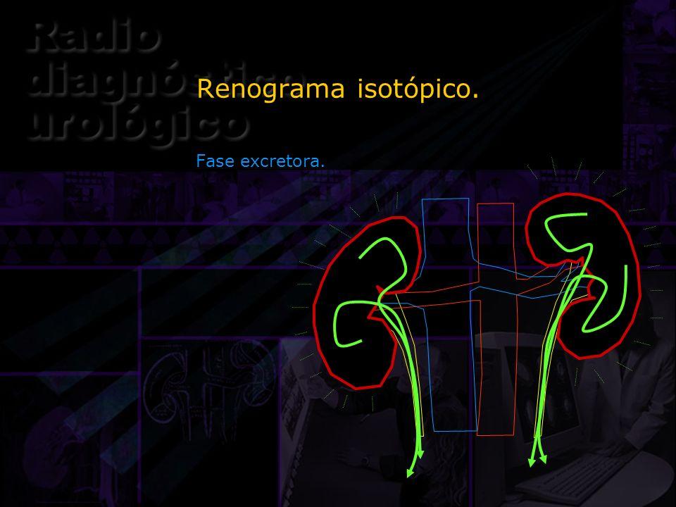 Renograma isotópico. Fase excretora.