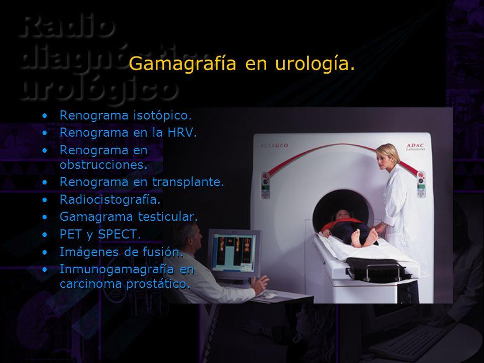 Gamagrafía en urología. Renograma isotópico. Renograma en la HRV. Renograma en obstrucciones. Renograma en transplante. Radiocistografía. Gamagrama te