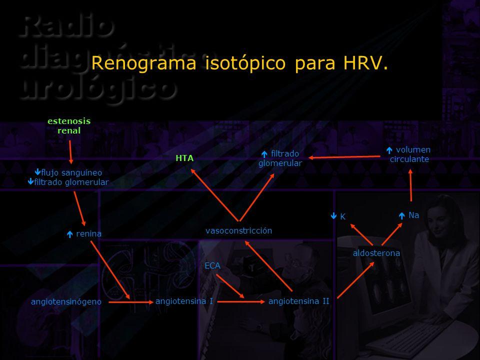 Renograma isotópico para HRV. estenosis renal flujo sanguíneo filtrado glomerular renina aldosterona vasoconstricción angiotensinógeno angiotensina I