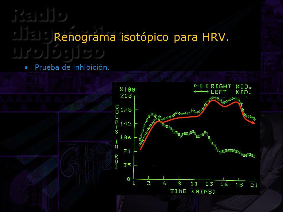 Renograma isotópico para HRV. Prueba de inhibición.