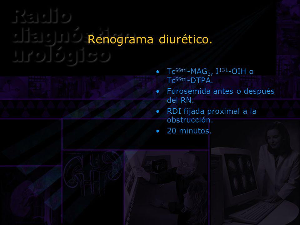 Renograma diurético. Tc 99m -MAG 3, I 131 -OIH o Tc 99m -DTPA. Furosemida antes o después del RN. RDI fijada proximal a la obstrucción. 20 minutos. Tc