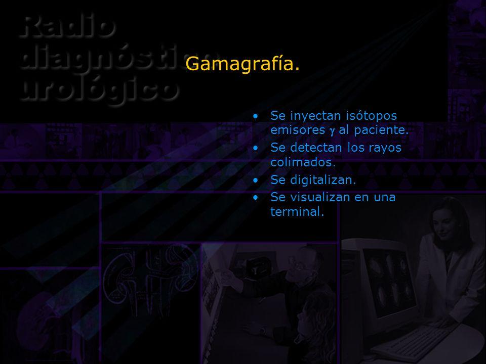 Gamagrafía. Se inyectan isótopos emisores al paciente. Se detectan los rayos colimados. Se digitalizan. Se visualizan en una terminal. Se inyectan isó