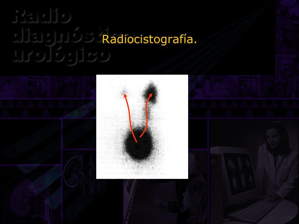 Radiocistografía.