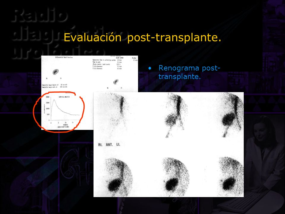 Evaluación post-transplante. Renograma post- transplante.