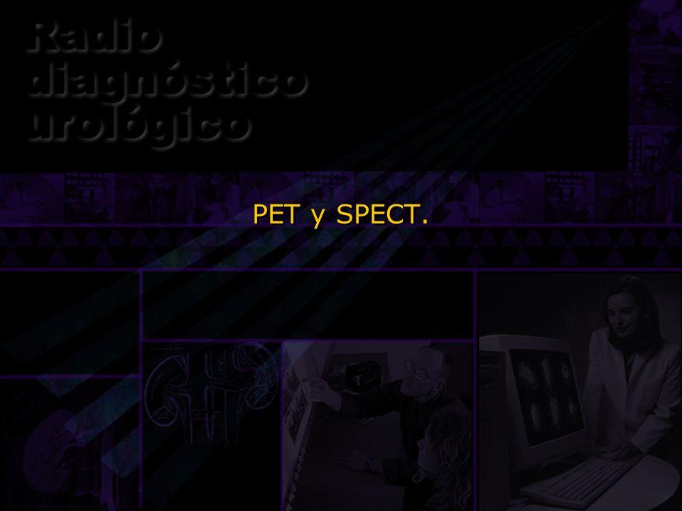 PET y SPECT.