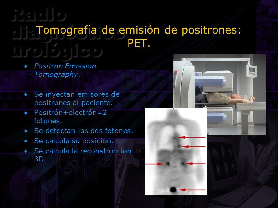 Tomografía de emisión de positrones: PET. Positron Emission Tomography. Se inyectan emisores de positrones al paciente. Positrón+electrón=2 fotones. S