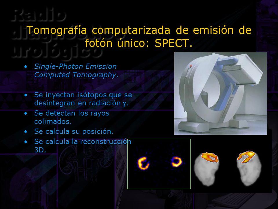 Tomografía computarizada de emisión de fotón único: SPECT. Single-Photon Emission Computed Tomography. Se inyectan isótopos que se desintegran en radi