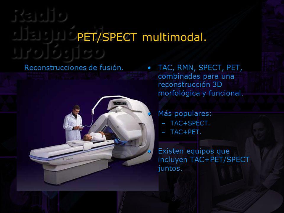 PET/SPECT multimodal. Reconstrucciones de fusión. TAC, RMN, SPECT, PET, combinadas para una reconstrucción 3D morfológica y funcional. Más populares: