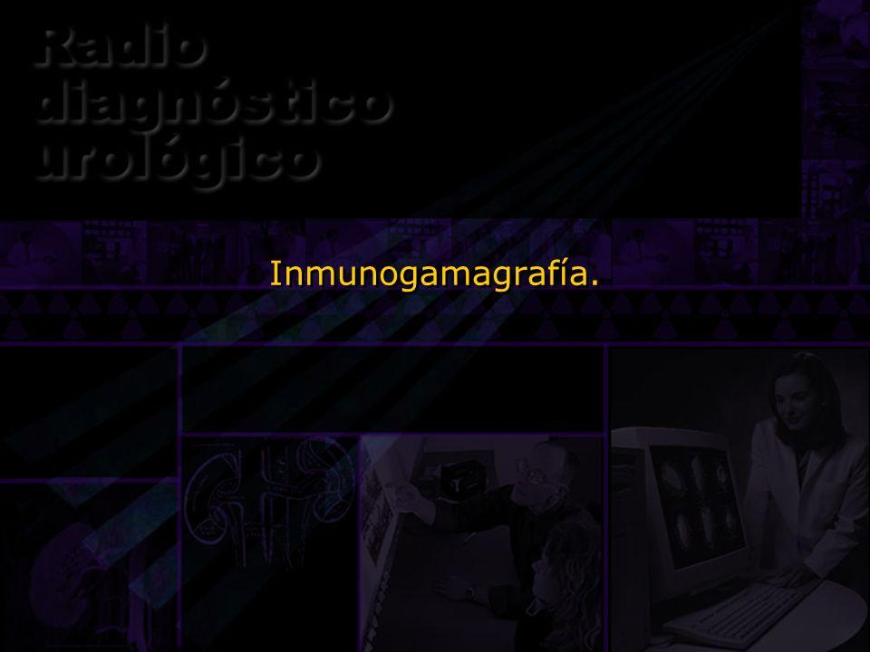 Inmunogamagrafía.
