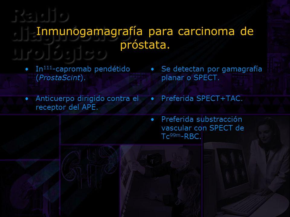 Inmunogamagrafía para carcinoma de próstata. In 111 -capromab pendétido (ProstaScint). Anticuerpo dirigido contra el receptor del APE. In 111 -caproma