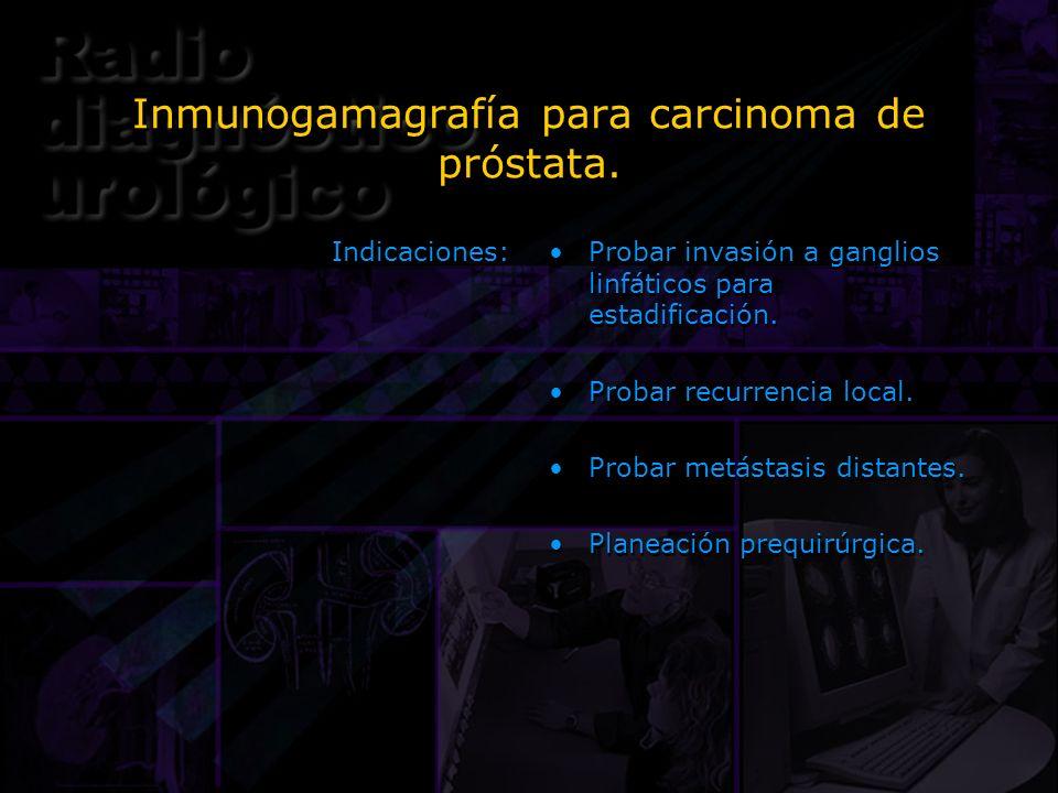 Inmunogamagrafía para carcinoma de próstata. Indicaciones: Probar invasión a ganglios linfáticos para estadificación. Probar recurrencia local. Probar