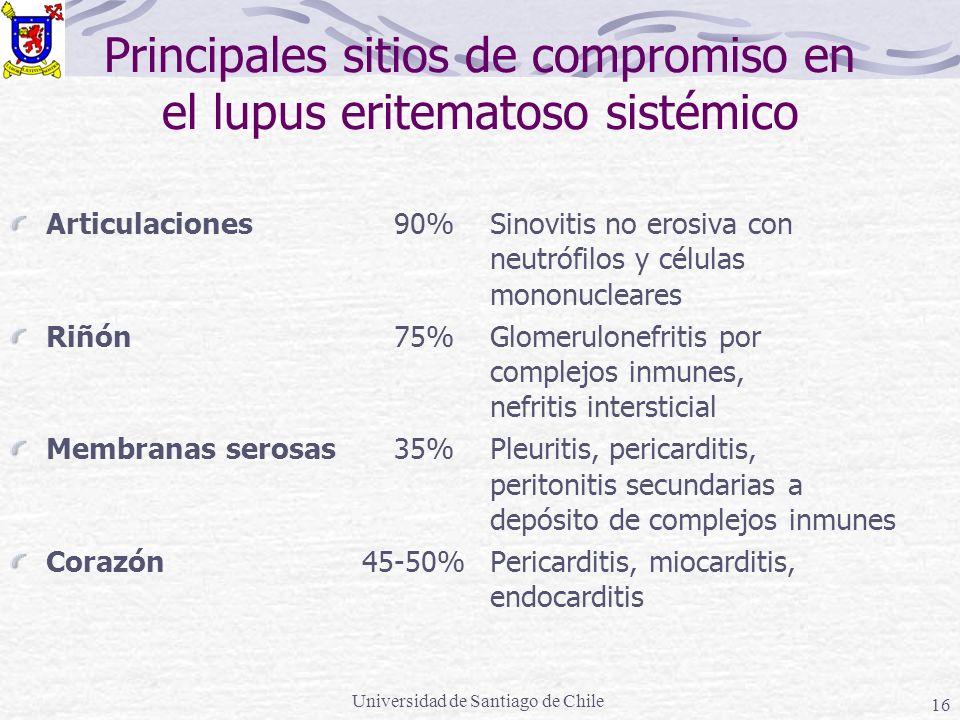 Universidad de Santiago de Chile 16 Principales sitios de compromiso en el lupus eritematoso sistémico Articulaciones90%Sinovitis no erosiva con neutrófilos y células mononucleares Riñón 75%Glomerulonefritis por complejos inmunes, nefritis intersticial Membranas serosas35%Pleuritis, pericarditis, peritonitis secundarias a depósito de complejos inmunes Corazón 45-50%Pericarditis, miocarditis, endocarditis