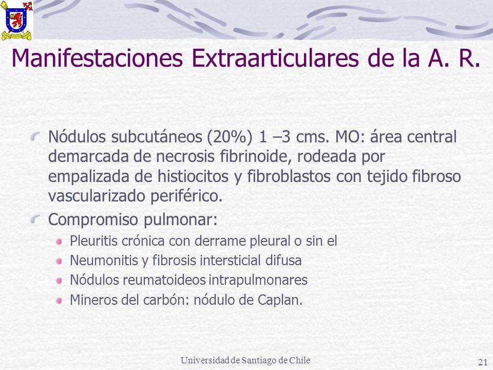 Universidad de Santiago de Chile 21 Manifestaciones Extraarticulares de la A. R. Nódulos subcutáneos (20%) 1 –3 cms. MO: área central demarcada de nec