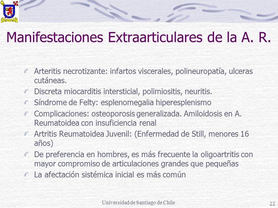 Universidad de Santiago de Chile 22 Manifestaciones Extraarticulares de la A. R. Arteritis necrotizante: infartos viscerales, polineuropatía, ulceras