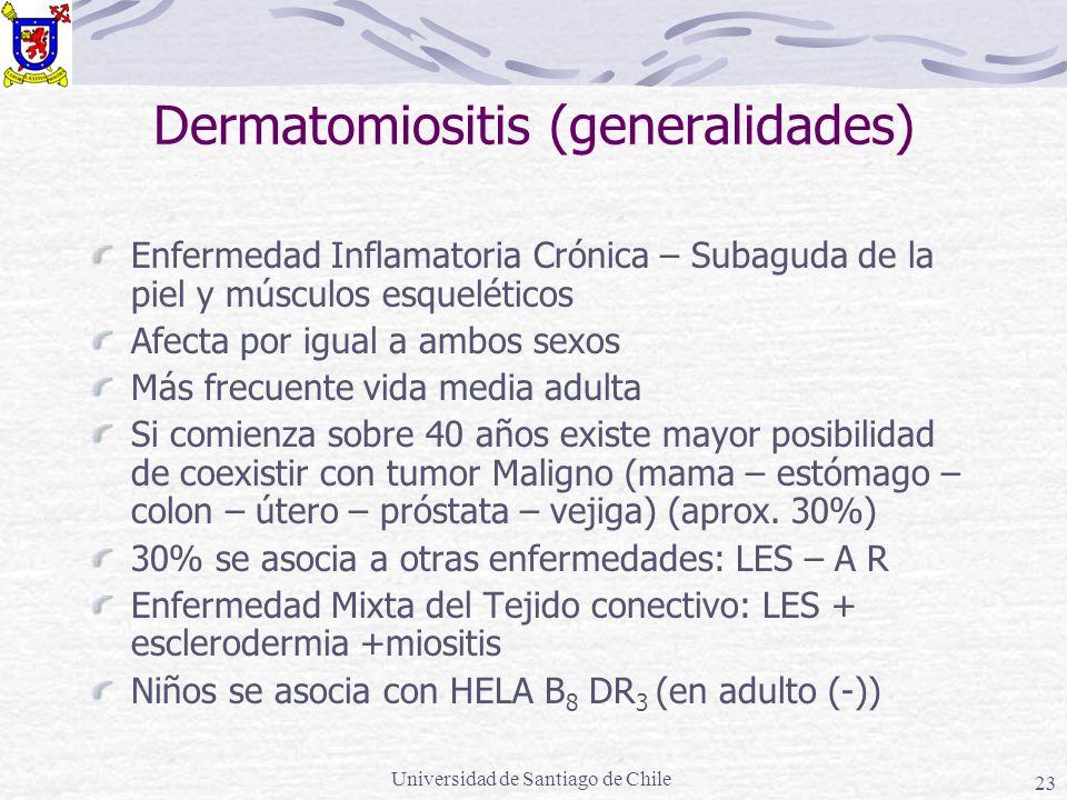 Universidad de Santiago de Chile 23 Dermatomiositis (generalidades) Enfermedad Inflamatoria Crónica – Subaguda de la piel y músculos esqueléticos Afec