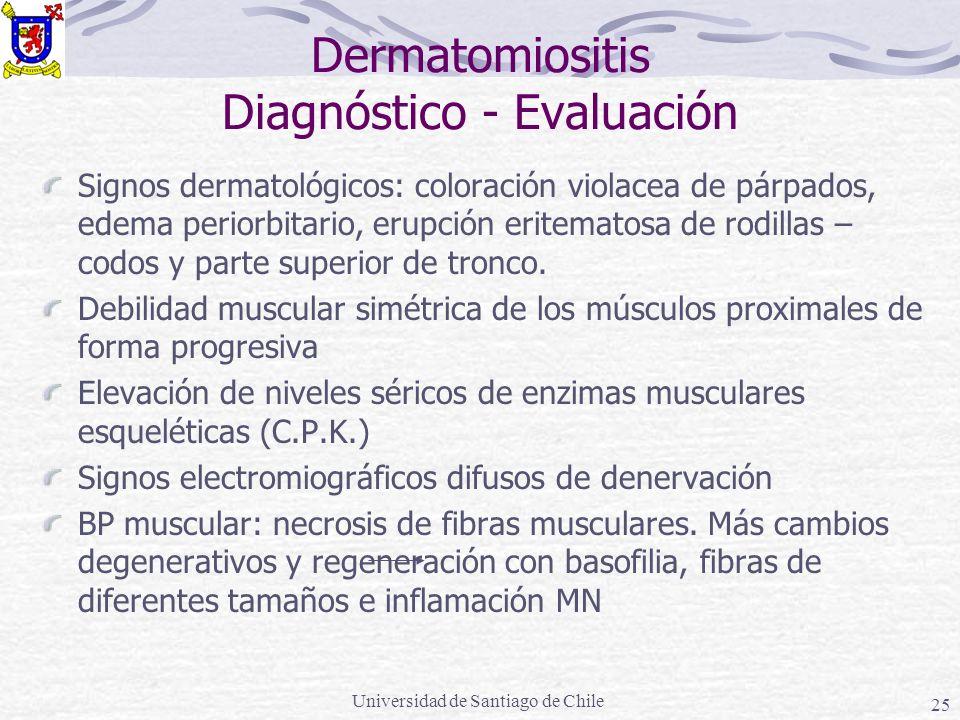 Universidad de Santiago de Chile 25 Dermatomiositis Diagnóstico - Evaluación Signos dermatológicos: coloración violacea de párpados, edema periorbitario, erupción eritematosa de rodillas – codos y parte superior de tronco.