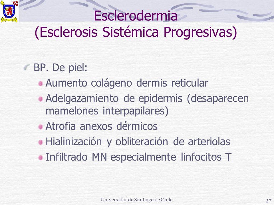 Universidad de Santiago de Chile 27 Esclerodermia (Esclerosis Sistémica Progresivas) BP. De piel: Aumento colágeno dermis reticular Adelgazamiento de
