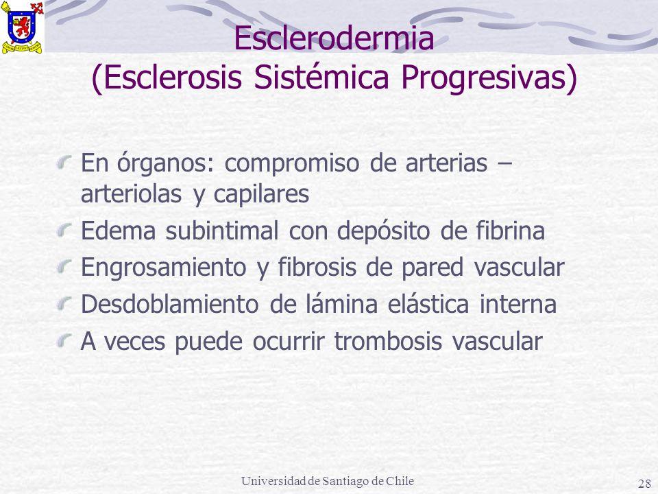 Universidad de Santiago de Chile 28 Esclerodermia (Esclerosis Sistémica Progresivas) En órganos: compromiso de arterias – arteriolas y capilares Edema