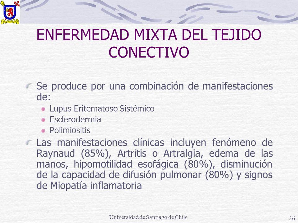 Universidad de Santiago de Chile 36 ENFERMEDAD MIXTA DEL TEJIDO CONECTIVO Se produce por una combinación de manifestaciones de: Lupus Eritematoso Sistémico Esclerodermia Polimiositis Las manifestaciones clínicas incluyen fenómeno de Raynaud (85%), Artritis o Artralgia, edema de las manos, hipomotilidad esofágica (80%), disminución de la capacidad de difusión pulmonar (80%) y signos de Miopatía inflamatoria
