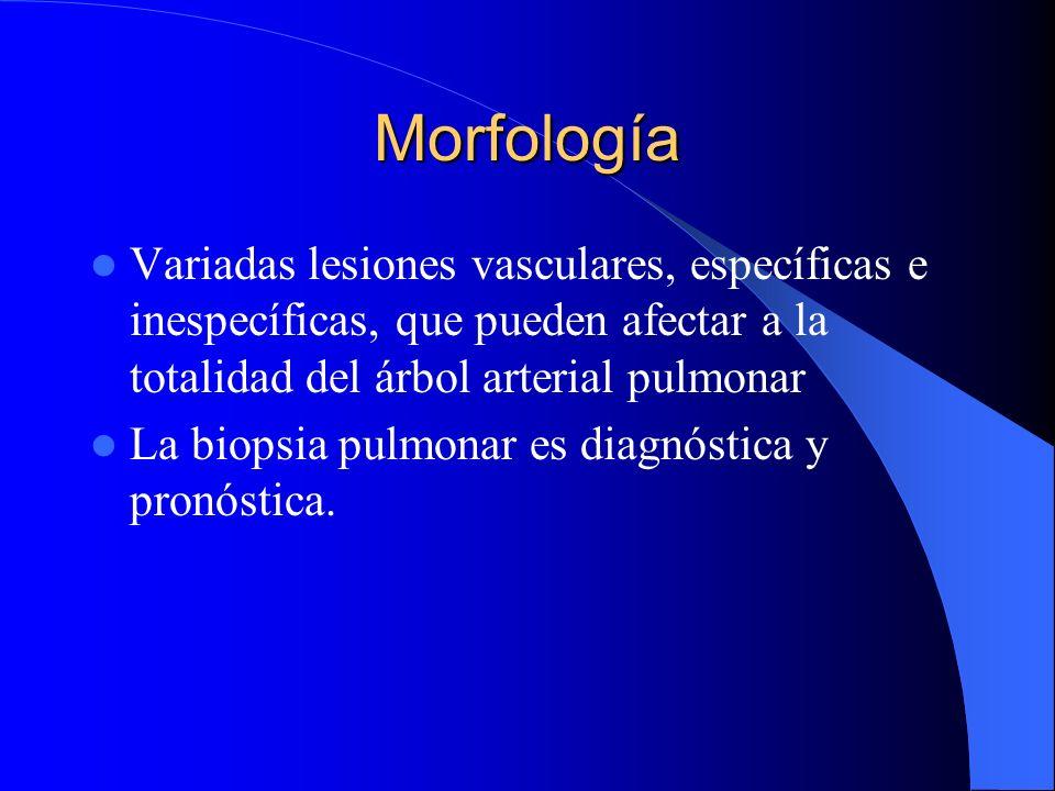 Morfología Variadas lesiones vasculares, específicas e inespecíficas, que pueden afectar a la totalidad del árbol arterial pulmonar La biopsia pulmona