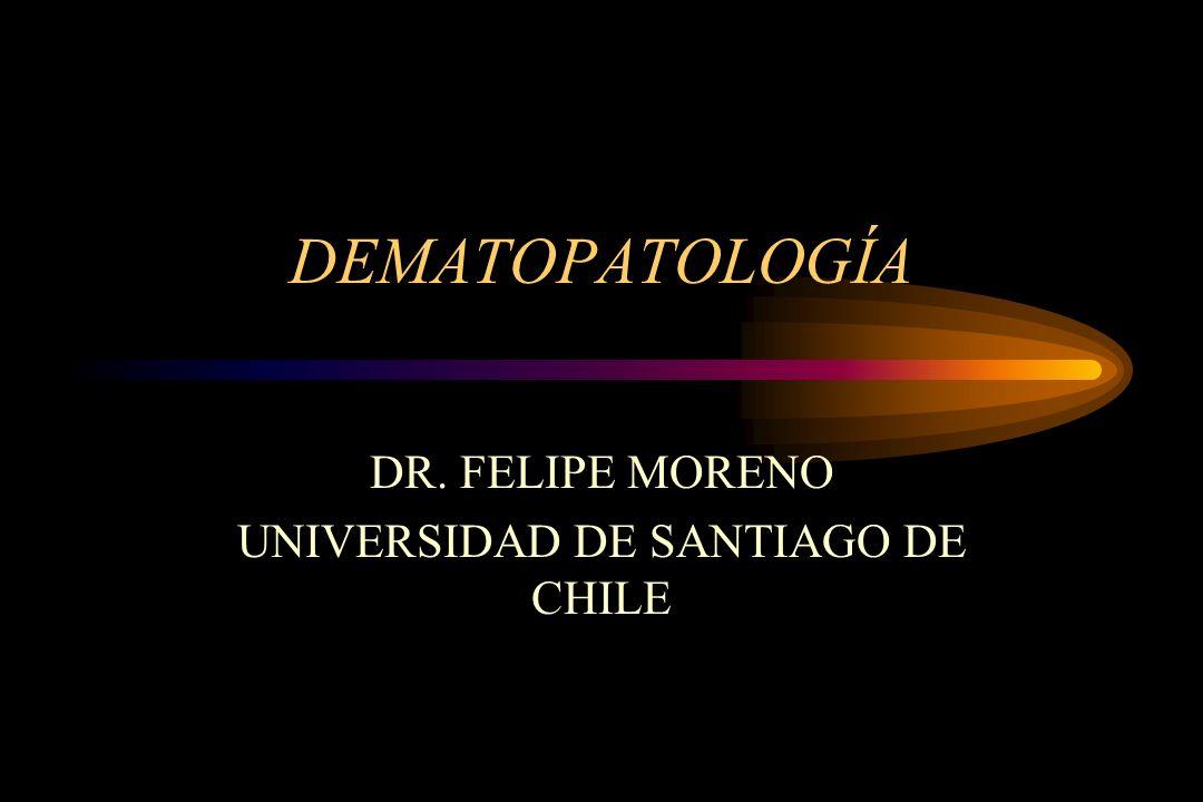 DEMATOPATOLOGÍA DR. FELIPE MORENO UNIVERSIDAD DE SANTIAGO DE CHILE