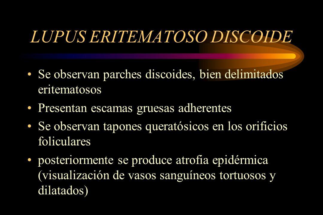 LUPUS ERITEMATOSO DISCOIDE Se observan parches discoides, bien delimitados eritematosos Presentan escamas gruesas adherentes Se observan tapones quera