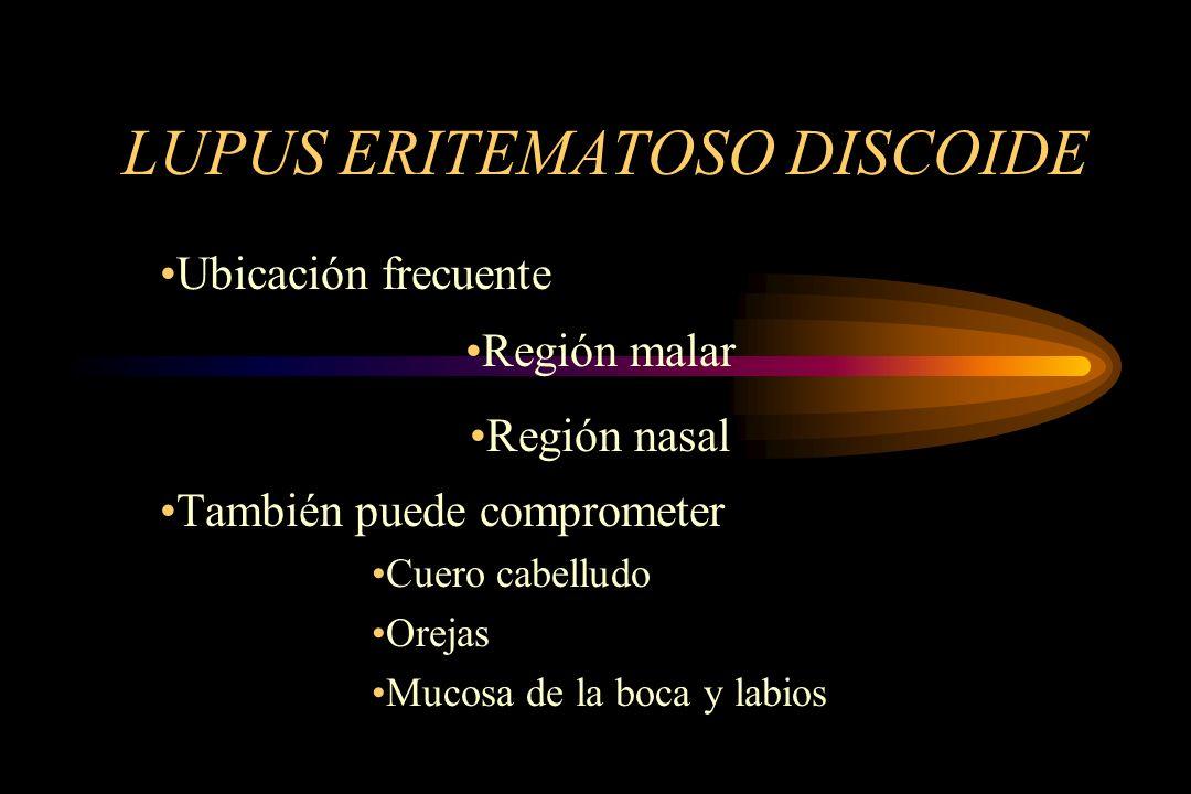 LUPUS ERITEMATOSO DISCOIDE Ubicación frecuente Región malar Región nasal También puede comprometer Cuero cabelludo Orejas Mucosa de la boca y labios
