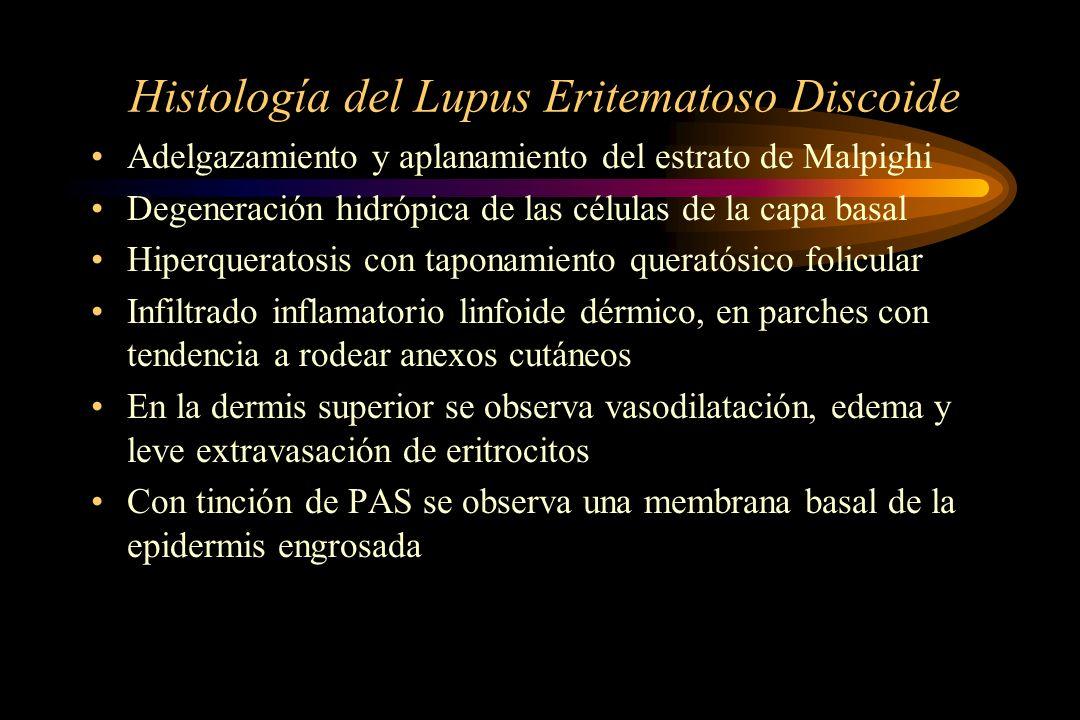 Histología del Lupus Eritematoso Discoide Adelgazamiento y aplanamiento del estrato de Malpighi Degeneración hidrópica de las células de la capa basal Hiperqueratosis con taponamiento queratósico folicular Infiltrado inflamatorio linfoide dérmico, en parches con tendencia a rodear anexos cutáneos En la dermis superior se observa vasodilatación, edema y leve extravasación de eritrocitos Con tinción de PAS se observa una membrana basal de la epidermis engrosada