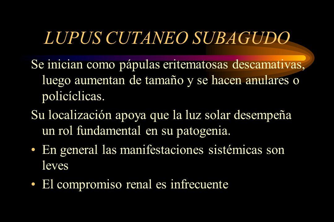 LUPUS CUTANEO SUBAGUDO Se inician como pápulas eritematosas descamativas, luego aumentan de tamaño y se hacen anulares o policíclicas. Su localización