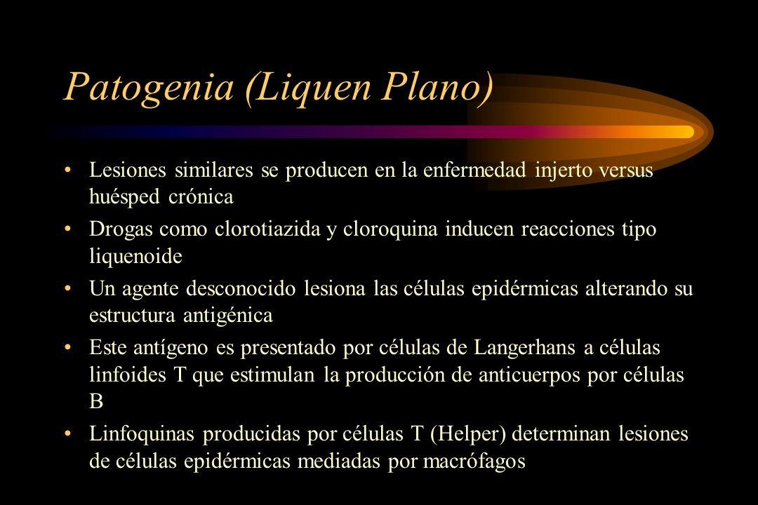 Patogenia (Liquen Plano) Lesiones similares se producen en la enfermedad injerto versus huésped crónica Drogas como clorotiazida y cloroquina inducen