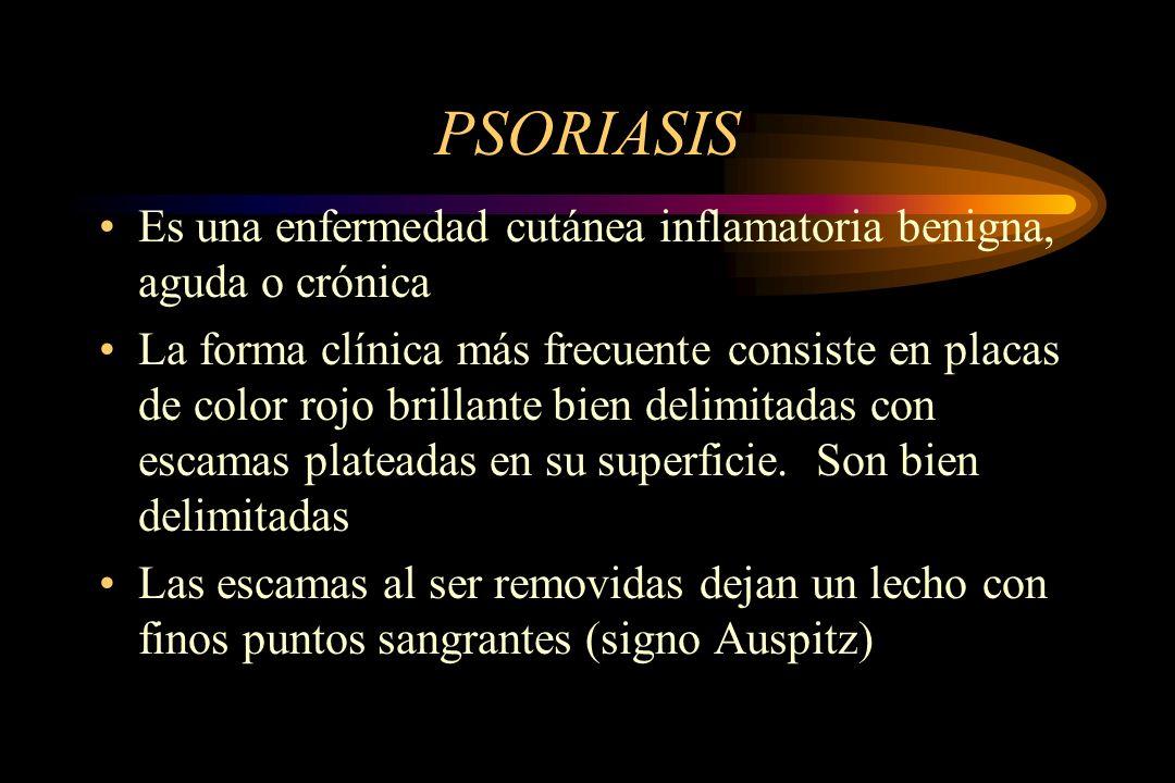 PSORIASIS Es una enfermedad cutánea inflamatoria benigna, aguda o crónica La forma clínica más frecuente consiste en placas de color rojo brillante bien delimitadas con escamas plateadas en su superficie.