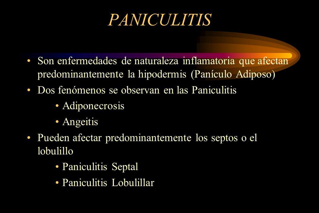 PANICULITIS Son enfermedades de naturaleza inflamatoria que afectan predominantemente la hipodermis (Panículo Adiposo) Dos fenómenos se observan en las Paniculitis Adiponecrosis Angeitis Pueden afectar predominantemente los septos o el lobulillo Paniculitis Septal Paniculitis Lobulillar