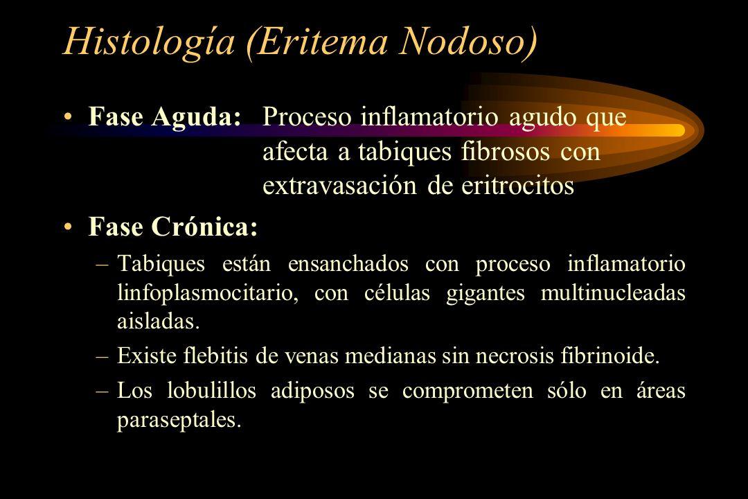 Histología (Eritema Nodoso) Fase Aguda:Proceso inflamatorio agudo que afecta a tabiques fibrosos con extravasación de eritrocitos Fase Crónica: –Tabiq