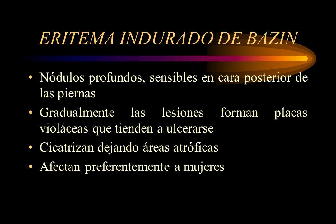 ERITEMA INDURADO DE BAZIN Nódulos profundos, sensibles en cara posterior de las piernas Gradualmente las lesiones forman placas violáceas que tienden