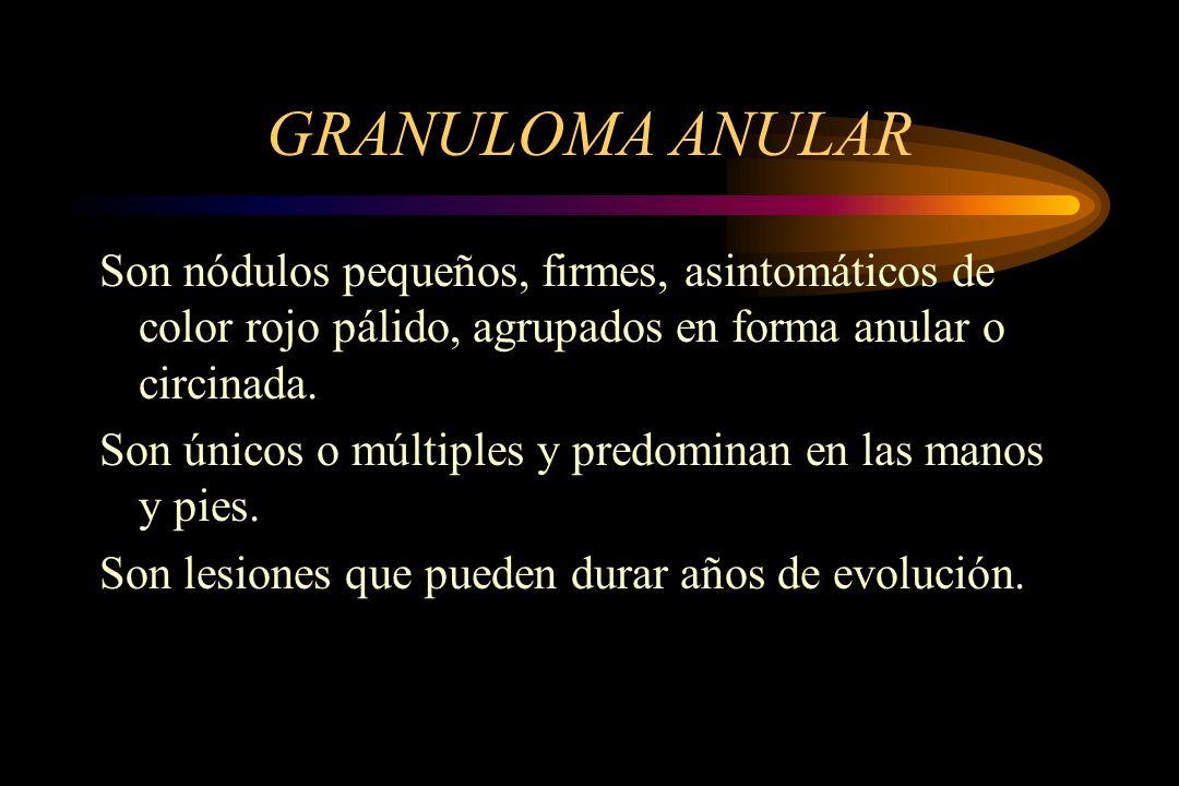 GRANULOMA ANULAR Son nódulos pequeños, firmes, asintomáticos de color rojo pálido, agrupados en forma anular o circinada. Son únicos o múltiples y pre