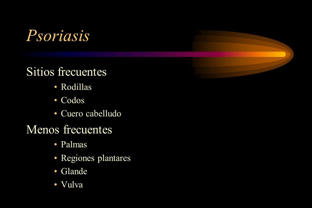 Psoriasis Sitios frecuentes Rodillas Codos Cuero cabelludo Menos frecuentes Palmas Regiones plantares Glande Vulva