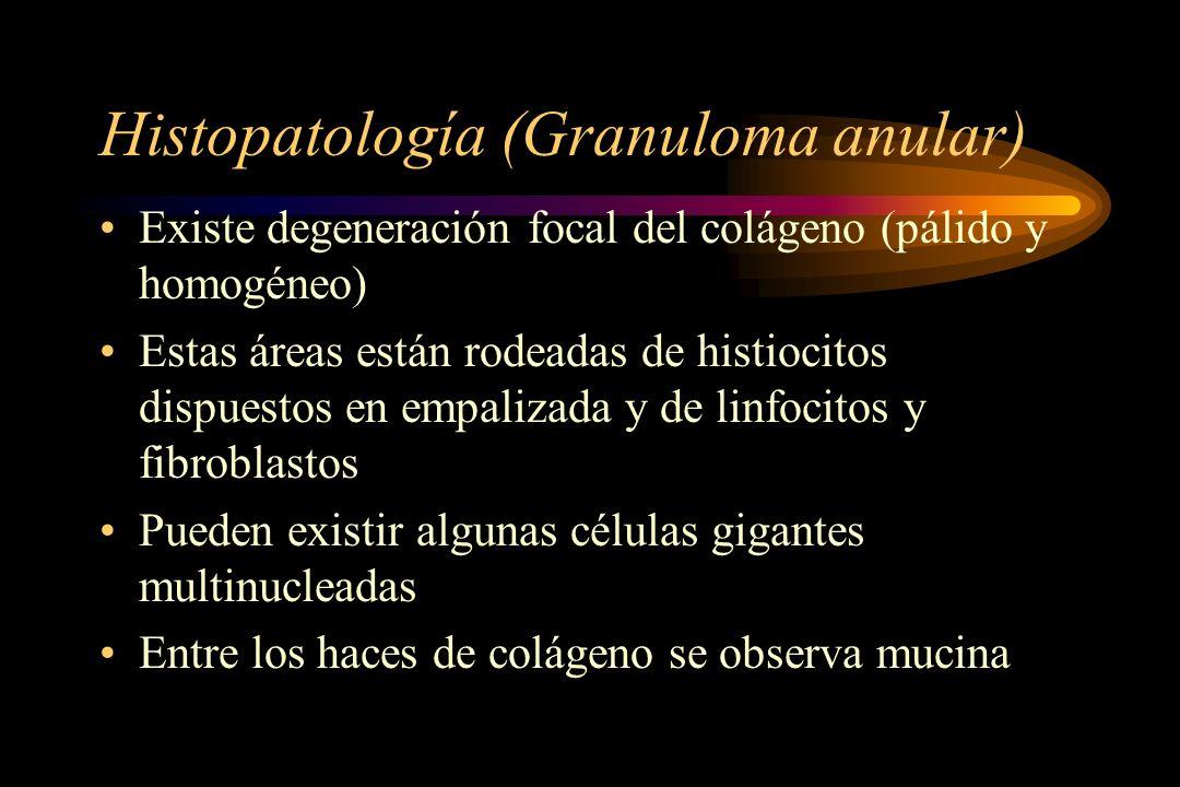 Histopatología (Granuloma anular) Existe degeneración focal del colágeno (pálido y homogéneo) Estas áreas están rodeadas de histiocitos dispuestos en empalizada y de linfocitos y fibroblastos Pueden existir algunas células gigantes multinucleadas Entre los haces de colágeno se observa mucina