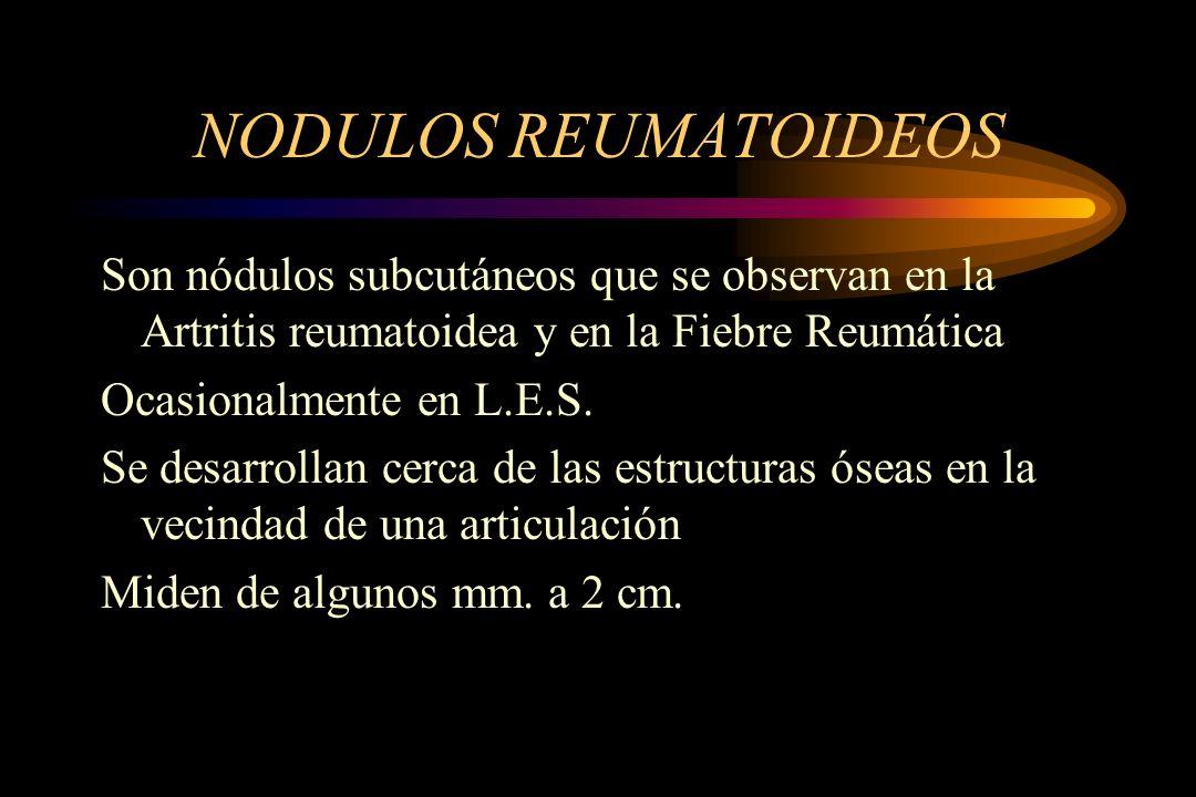 NODULOS REUMATOIDEOS Son nódulos subcutáneos que se observan en la Artritis reumatoidea y en la Fiebre Reumática Ocasionalmente en L.E.S. Se desarroll