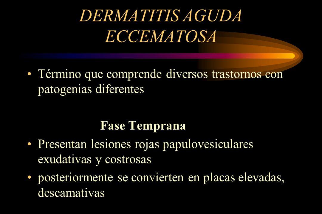 DERMATITIS AGUDA ECCEMATOSA Término que comprende diversos trastornos con patogenias diferentes Fase Temprana Presentan lesiones rojas papulovesiculares exudativas y costrosas posteriormente se convierten en placas elevadas, descamativas