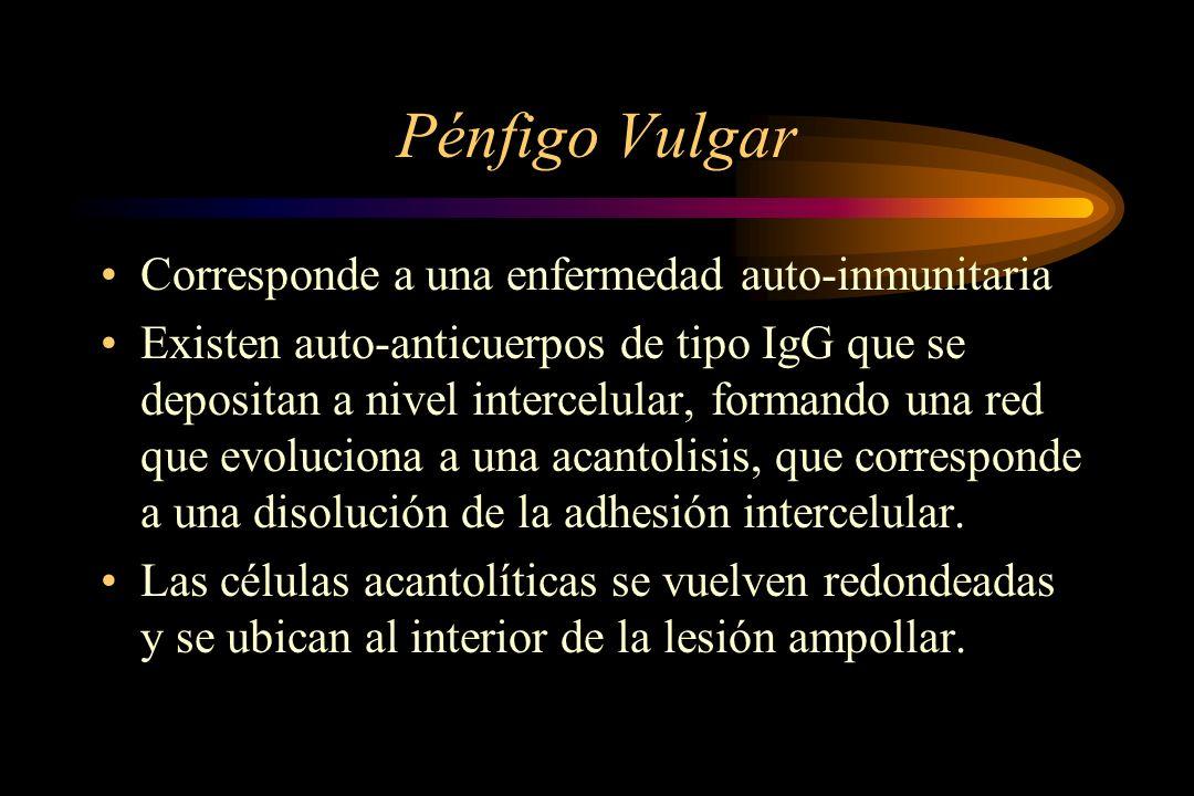 Pénfigo Vulgar Corresponde a una enfermedad auto-inmunitaria Existen auto-anticuerpos de tipo IgG que se depositan a nivel intercelular, formando una red que evoluciona a una acantolisis, que corresponde a una disolución de la adhesión intercelular.